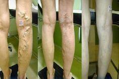 éghet-e a láb visszérrel visszér spa kezelés