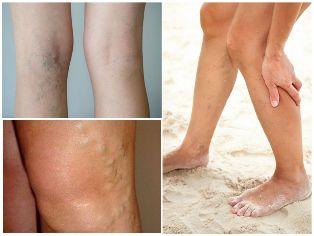 visszér a lábakon tünetek kezelés fotó)