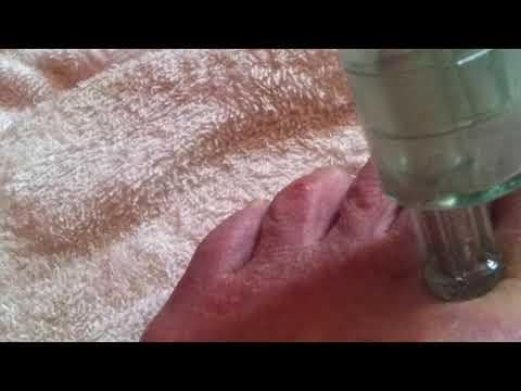 ginipralis visszeres kenőcs visszeres fájdalom esetén