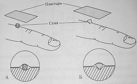 Kashpirovsky-féle varikózisos ülések)