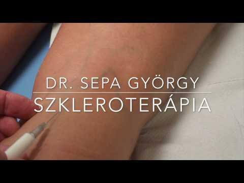 visszér szkleroterápia kezelése hogyan kell felhúzni a visszér kötését