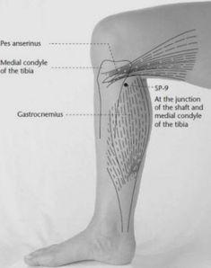Aromax Fit Body Anticellulit Gél ml | Aromax | Biosziget
