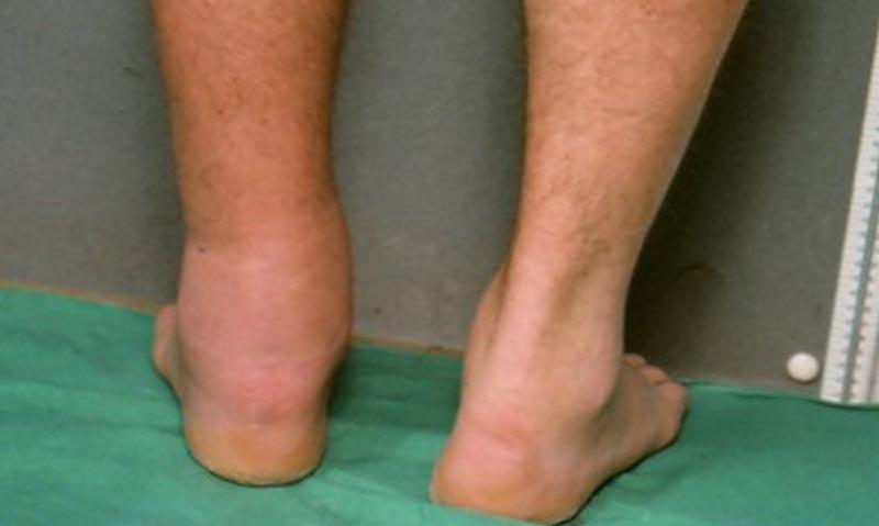 az alsó végtagok visszér, az 1. stádium tünetei