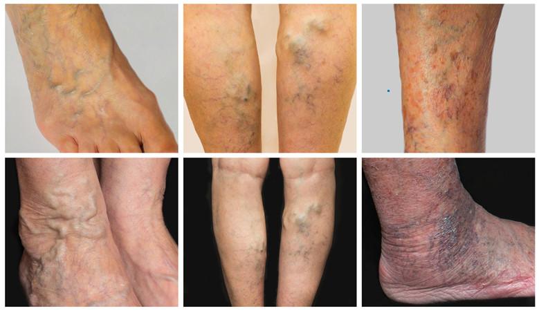 visszeres véraláfutás a lábakon