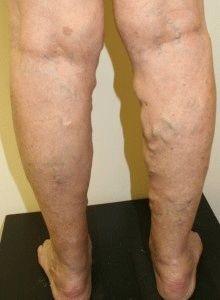 visszér trombophlebitis kezelés piócákkal)