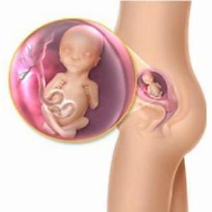 visszér és terhesség 26 hét)