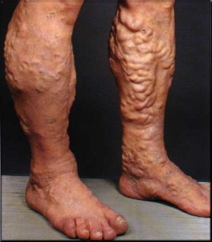 Vlagyimir varikozus thrombophlebitis