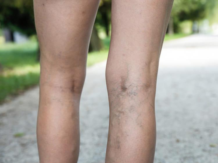 Visszeres láb - Egészség | Femina