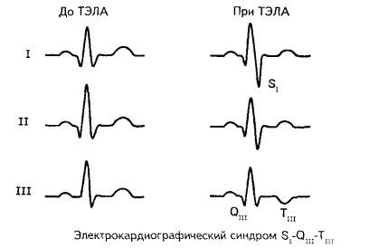 fizikai aktivitás az alsó végtagok varikózisával)