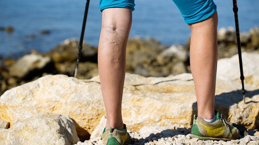 Csúnya, kék erek a lábon - Mit tehetsz visszér ellen? - Szépség és divat | Femina