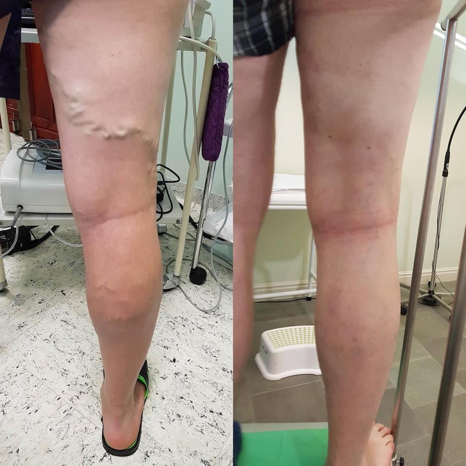 visszér a lábakon fotó műtét után