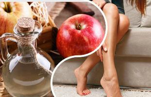 kenőcs a visszér ellen a lábakon megelőzés nyers burgonya visszér vélemények