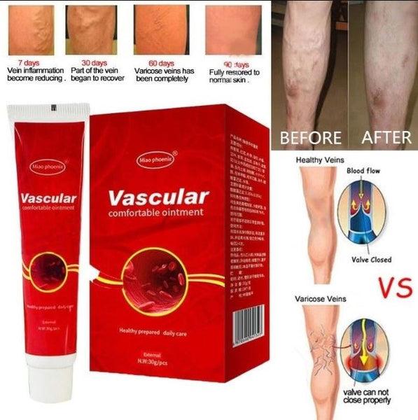 duzzanat kezelése a varikózisos lábakon)