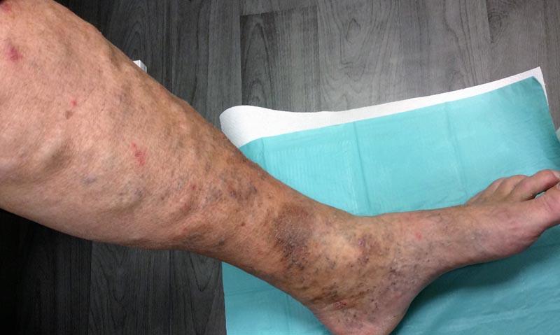 a lábakon lévő vénák láthatók, ez visszér)