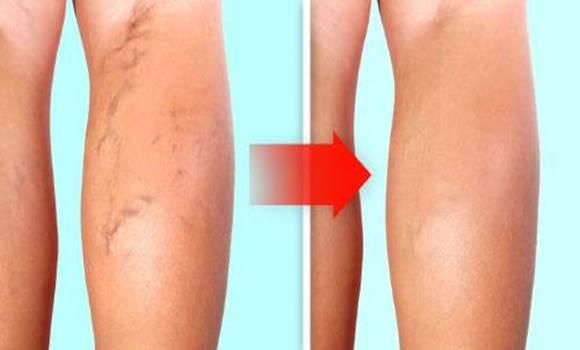 milyen vitaminok a visszerek a lábak