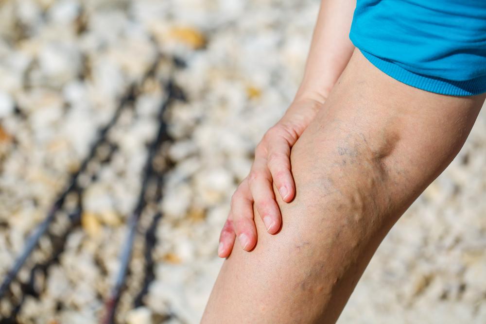 visszér parafin fürdők hogyan kell kezelni a visszér szkleroterápiát