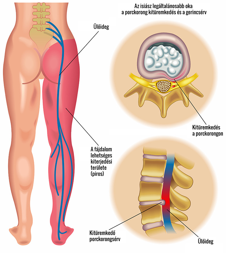 jógagyakorlat a lábak varikózisának
