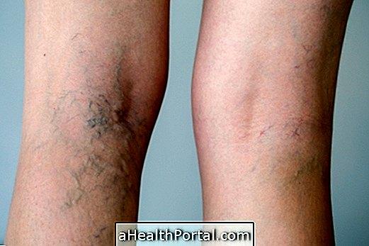 A varikózis műtét után a láb fáj