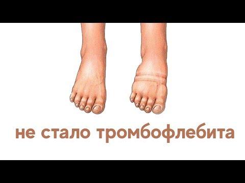 badan visszérrel)