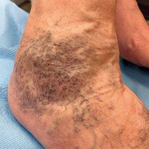 a lábbetegség tünetei visszeres