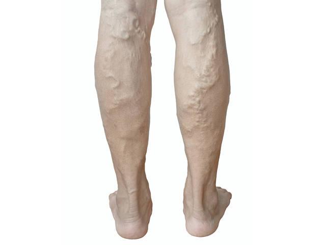 a visszeres lábak fáradtságától a terapeuta visszereket kezel