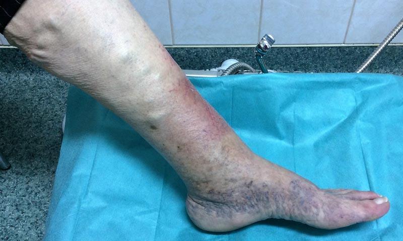 foltok a lábak bőrén visszérrel