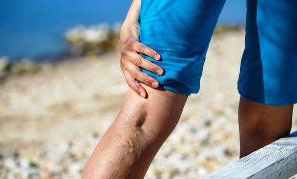 hogyan lehet megállítani a visszér kialakulását visszér, mi történik a lábakban