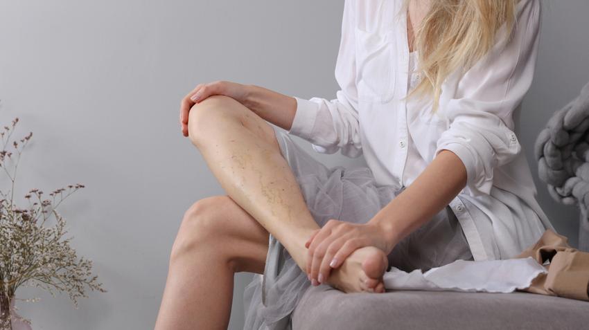 Visszeres a lába? Mi lehet a visszeresség lelki oka?