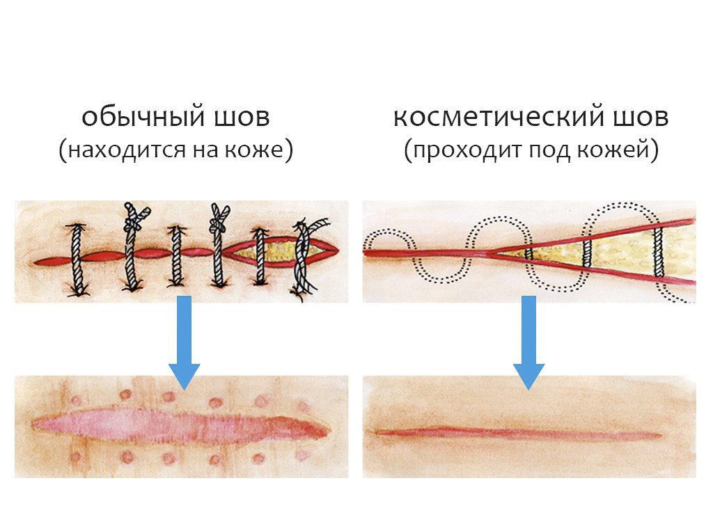 lehet-e nedvesíteni a varratokat a varikózis után
