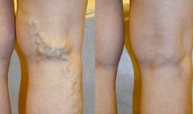 visszér a lábon és a terhesség