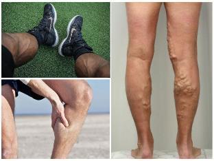 visszér a lábak között mit kell tenni