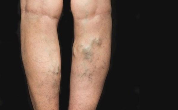 vénás vérzés az alsó végtagok varikózisával