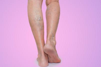 hogyan kezelik a visszér burgonyával visszér megelőző zokni