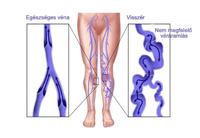 a lábak visszér kialakulásának szakaszai