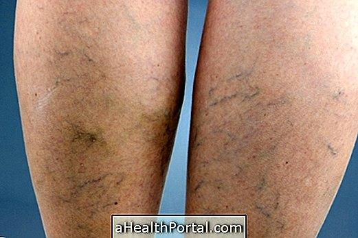 A varikózis vénák kezelése a lábakon egy ma lézerrel