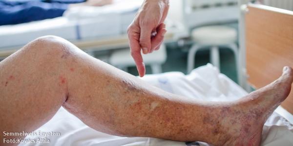 ha visszér alakul ki visszér a lábakon kezelés injekciókkal vélemények