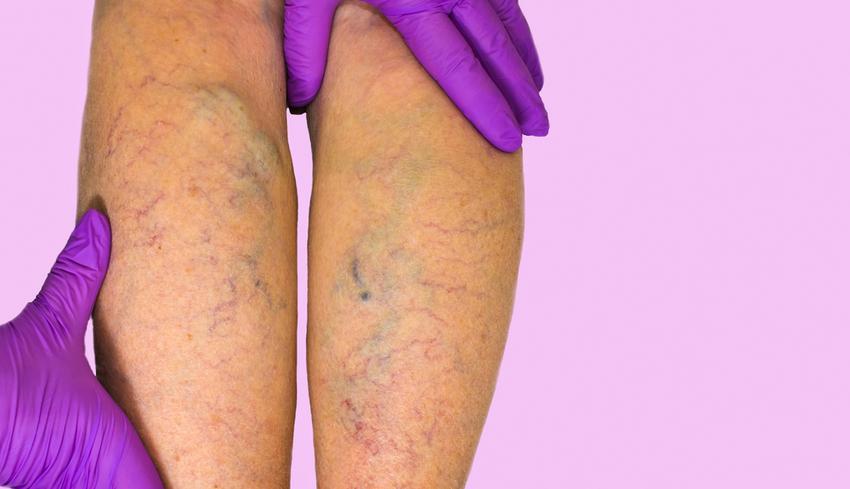 hogyan kell viselni a visszér harisnyáját szúrja a lábat visszér