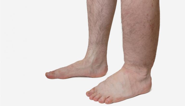 a láb megduzzad a visszerektől)