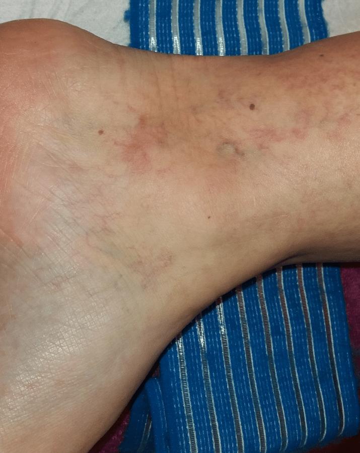 a lábak bőrének elszíneződése visszeres az alsó végtagok visszeres fizikuma