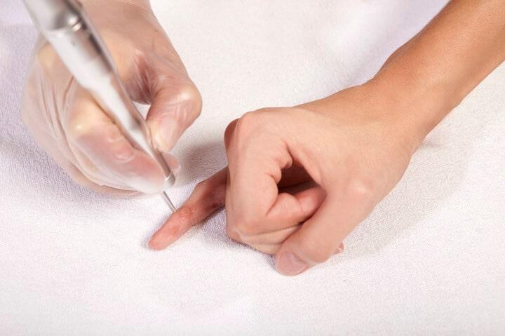népi gyógymódok a visszér kezelésére vélemények