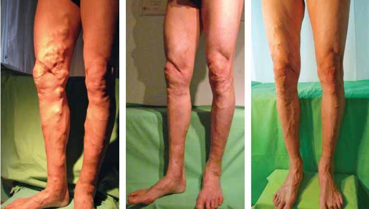 Hazánkban elsőként csak Nálunk érhető el a VenaSeal, szövetragasztóval végzett modern visszérműtét!