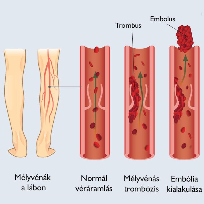 a lábak a visszerek miatt fájnak