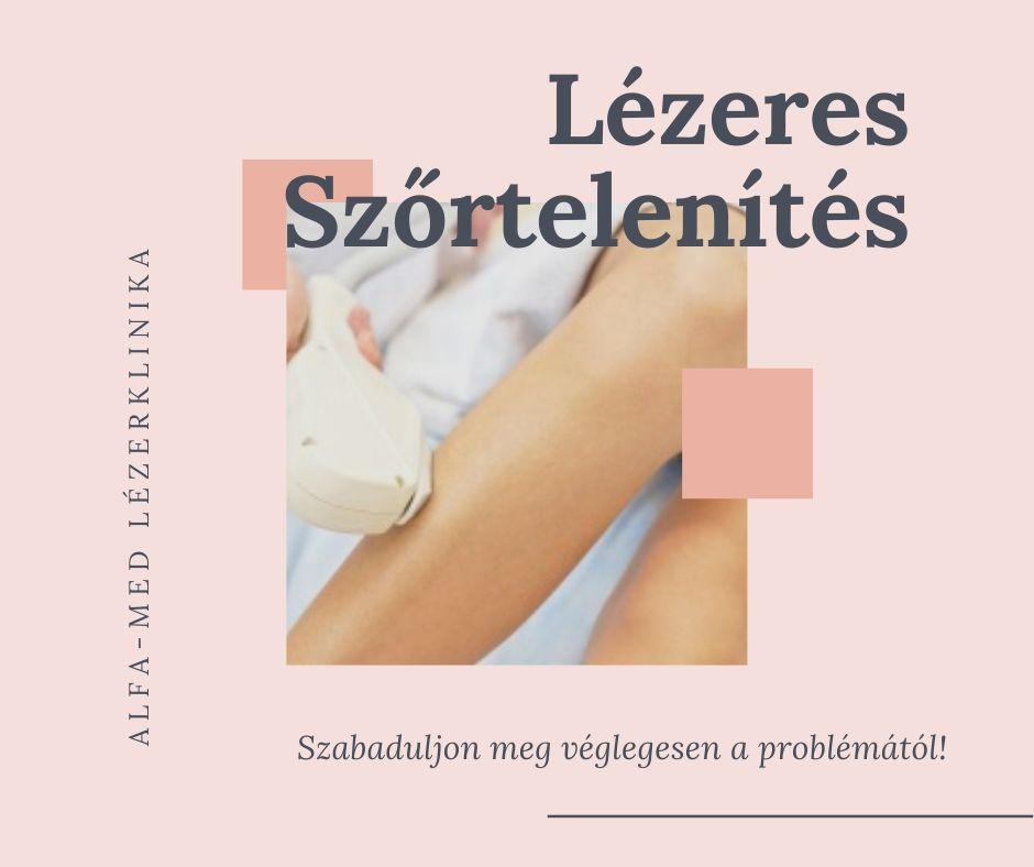 A lábak varikozásainak kezelése Murmanszkban