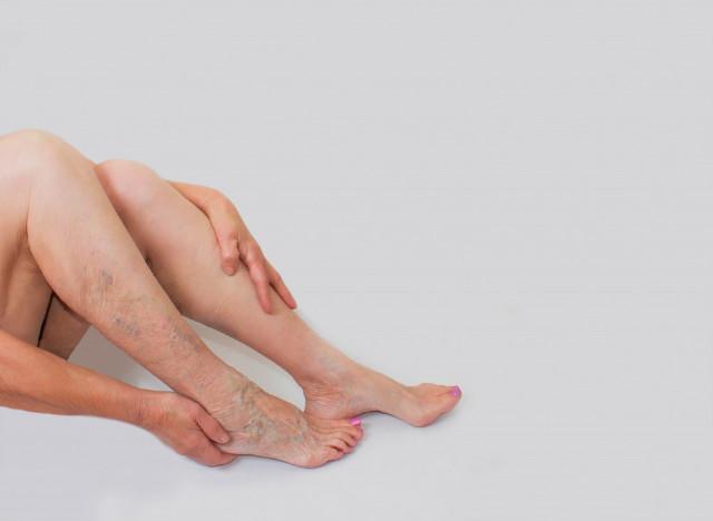 a lábak visszérrel járó káros termékei