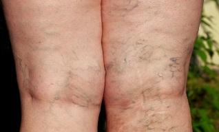 a láb megduzzad a visszér miatt a visszér szövődményeinek tünetei