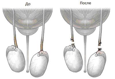 a spermatikus zsinór visszérje a férfiaknál