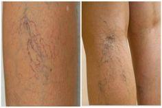 milyen gyógymódok a visszér ellen miért húzza a visszeres lábakat