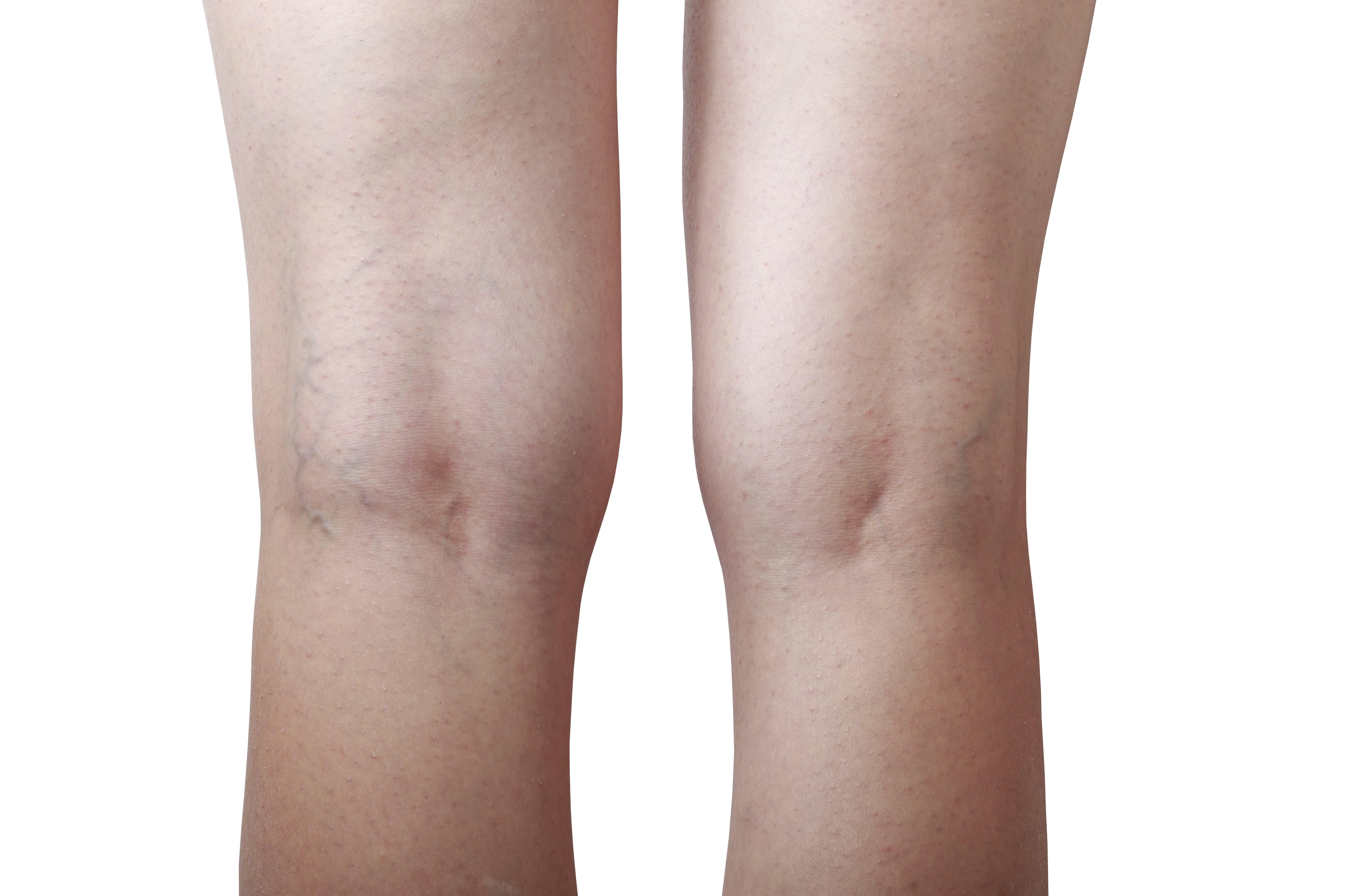 lehetséges-e a visszér eltávolítása műtét nélkül a varikózis a lábán ütközik