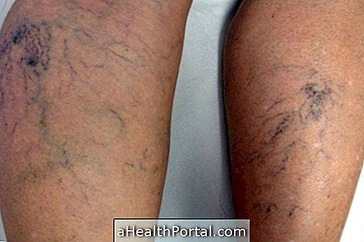 Milyen gyakorlatokat lehet tenni a lábak varikózus vénáival - Dongaláb