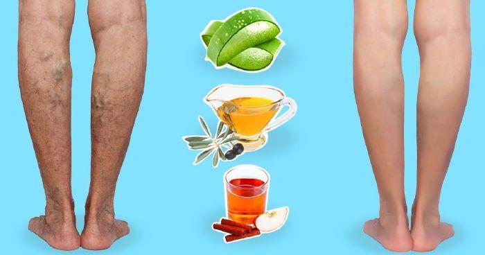 a lábak visszérgyulladása és alternatív kezelés